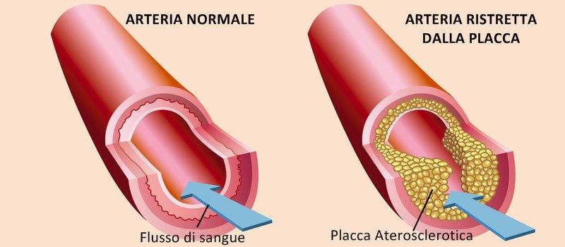 Arterosclerosi